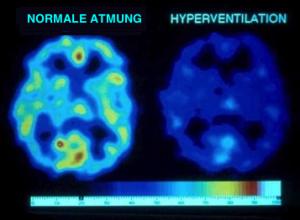 Wirkung von einer Minute willentlicher Hyperventilation aufs Gehirn. Durch Vasokonstriktion und andere Effekte kommt es zu starkem Sauerstoffmangel - obwohl man mehr atmet!