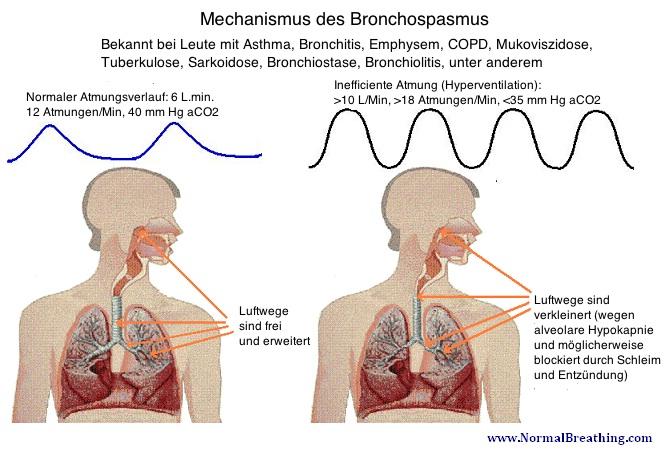 Zusammenhang Atmung und Bronchospasmus