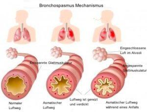 Bronchospasmus Mechanismus