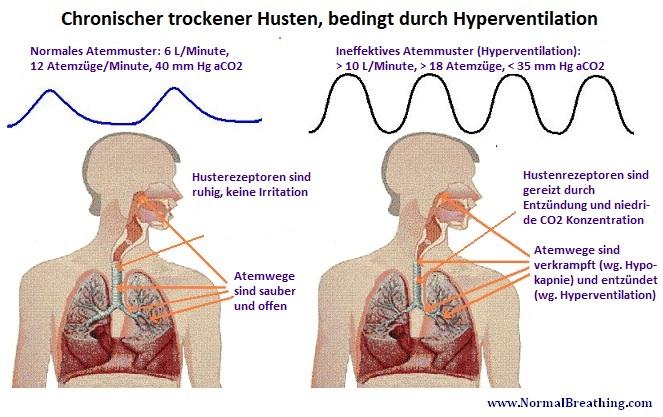 Chronischer trockener Husten und Zustand der Atemwege