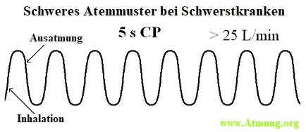 schwer atmendes Muster